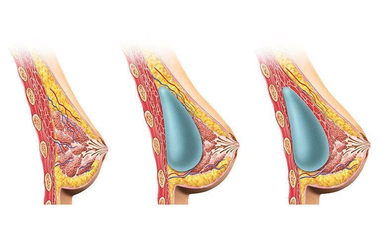 Illustration augmentation mammaire 2