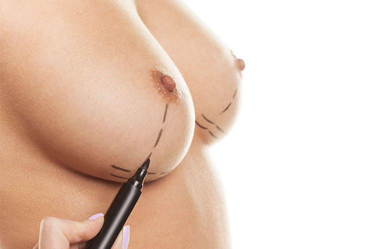 Illustration ptose mammaire 1
