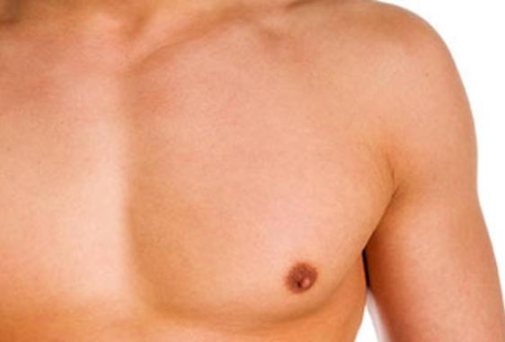 Illustration gynécomastie chez l'homme